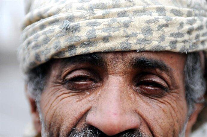 A Ramadan tradition in Yemen: Kohl