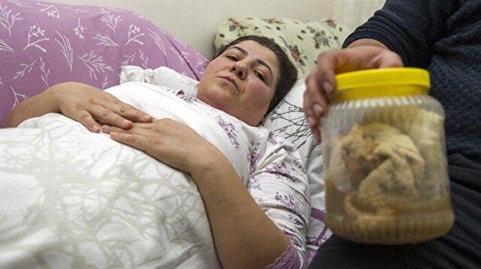 Kanser olabilirsin denilen kadının karnından bir kavanoz gazlı bez çıktı