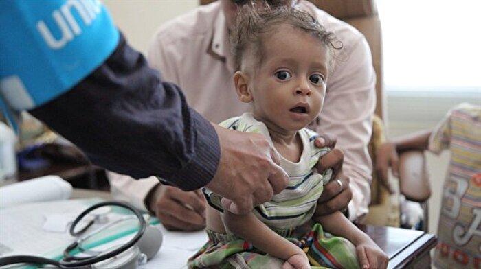 Yemen'de çocukların ağlayacak gücü yok