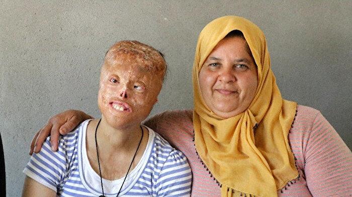 Leyla'nın isyanı: Yüzüm yanık diye benden kaçıyorlar