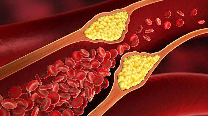 Kolesterole iyi gelen besinler nelerdir?