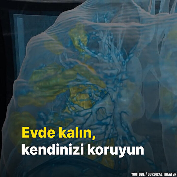 Koronavirüsün ciğerlere verdiği zarar sanal gerçeklik videosuyla görüldü