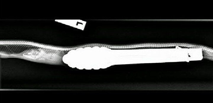 Ameliyatın ardından konuşan Dr. Oliver Funnell, maşayı zorlanmadan yılanın içinden çıkardıklarını söyledi.