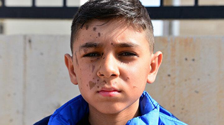 Arkadaşı Yiğit Alinin yüzüne temizlik malzemesi döktü: Doktorlar izlerin kalacağını söyledi