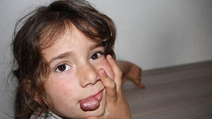 Minik Rabia dudağındaki kitle ile yaşıyor: Aile Arkadaşları alay eder diye okula gitmeyen kızları için yardım istiyor