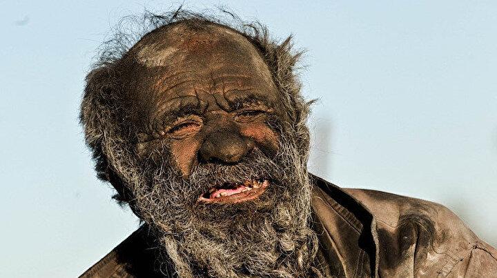 Dünyanın en kirli adamı: Yarım asırdan fazla süredir duş almıyor