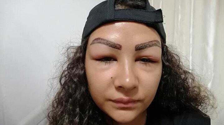 Bir estetik faciası daha: Reklam yüzü olmak için gitti hastanelik oldu