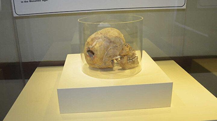 Üç bin yıllık kafatasındaki ameliyat izi görenleri şaşırtıyor