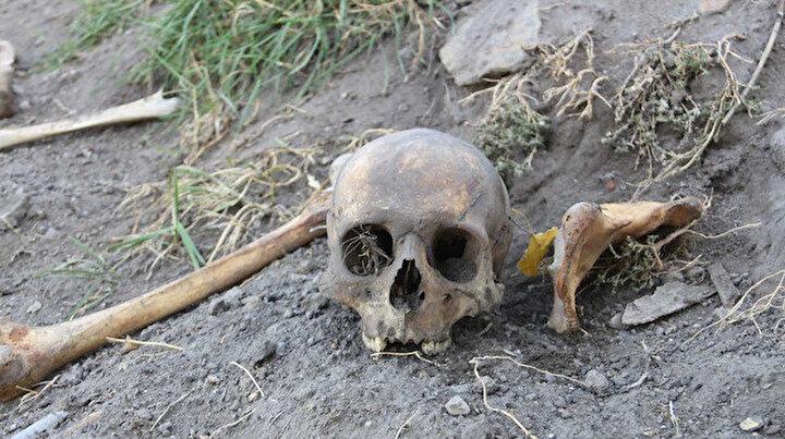 Korkutan görüntü: Her yerinden kafatası ve kemikler fışkırdı