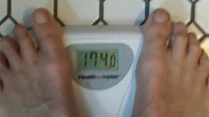 Kola diyetine başlamadan önce (174 pounds) yani 78 kilo olan Prior...