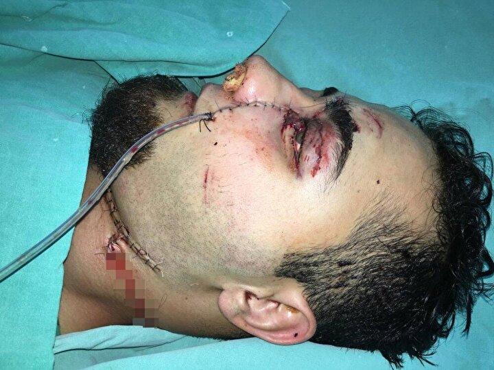 Operasyona katılan itfaiye ekibi, Emre Gündoğanın yüzündeki demirin dışta kalan bölümünü kesti.