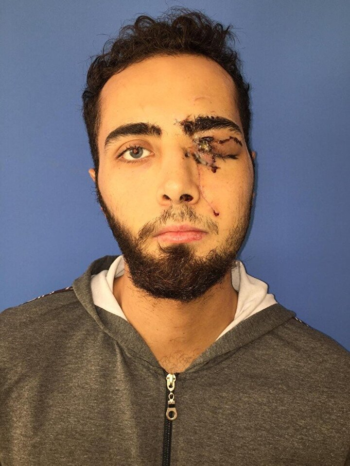 Ağır yaralanan genç, Alanya Devlet Hastanesindeki ilk müdahalenin ardından Akdeniz Üniversitesi Hastanesine sevk edildi.
