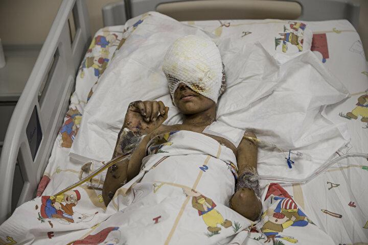 Saldırıda görme yetisini ve bir kolunu kaybeden, vücudunda yanıklar oluşan küçük Muhammed de o güne dair hiçbir şey hatırlamadığını kaydetti.