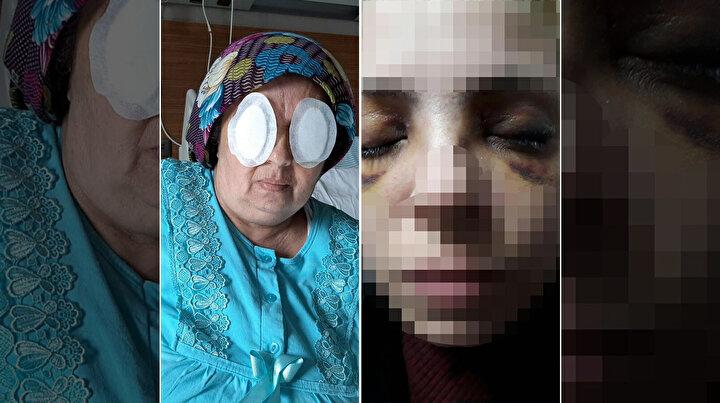 Adana Dr. Ekrem Tok Ruh Sağlığı Hastanesinde yatarak tedavi gören şizofreni hastası N.K., 1 Martta aynı odada kaldığı 3 çocuk annesi Sultan Günerin iki gözünü parmağıyla oydu. Sultan Güner, götürüldüğü Adana Şehir Hastanesinde tedaviye alınırken, olayla ilgili başlatılan soruşturma kapsamında Dr. Ekrem Tok Ruh Sağlığı Hastanesi Başhekimi ile 1 başhekim yardımcısının da aralarında bulunduğu 8 personel açığa alındı. N.K. de tek kişilik sünger odada gözlem altına alındı. Soruşturmada N.K.nın, kendisine küfrettiğini ileri sürdüğü babaannesi K.K.yi baltayla öldürdüğü de ortaya çıktı.