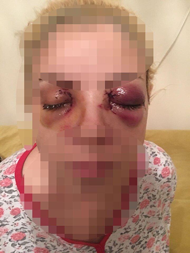 N.K.nin ayrıca 2018 yılında ismi öğrenilemeyen bir kadına saldırdığı için Manisa Ruh Sağlığı ve Hastalıkları Hastanesine götürüldüğü, burada yatarken, Burcu Ş. adlı hastanın da diş fırçasıyla gözlerini oymaya çalıştığı belirlendi.