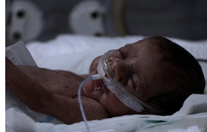 YYÜ Dahili Tıp Bilimleri Bölümü Çocuk Sağlığı ve Hastalıkları Ana Bilim Dalı Başkanı Prof. Dr. Oğuz Tuncer, Egemen bebeğin 3,5 ayın sonunda hayata tutunduğunu söyledi.