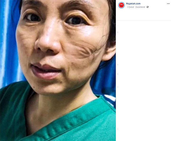 Wuhanda Corona virüsü ile mücadele ederken yoğunluktan bitkin düşen sağlık çalışanları.