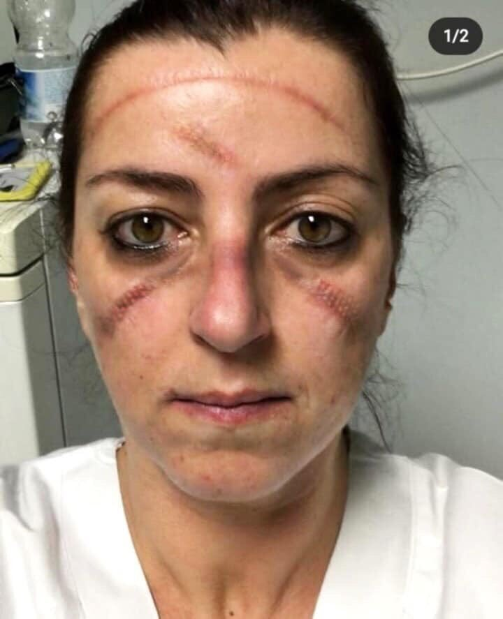 Yoğun bakımda uzun saatler çalışan İtalyan hemşire ve doktorların yüzleri.