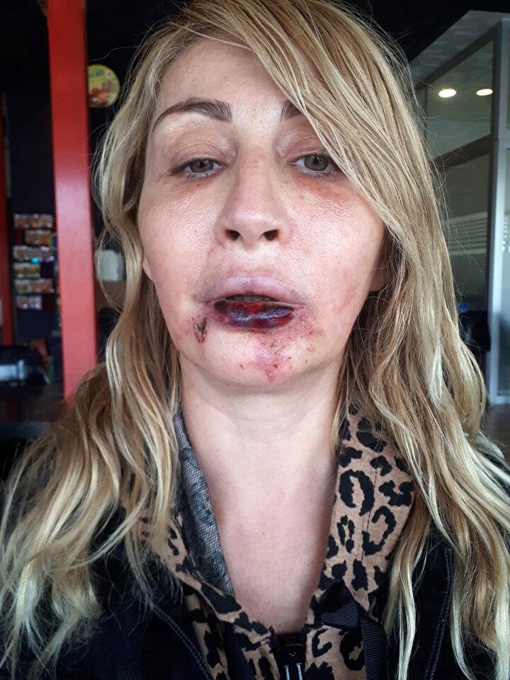 Yapılan tüm işlemler için estetik merkezine 7 bin 500 lira ödeyen Uzunoğlunun yüzüne ve dudağına yapılan dolgu kısa sürede kayboldu. Bunun üzerine 18 Kasımda Uzunoğlunun göbek bölgesinden alınan yağ dokusu, 4üncü kez yüzüne, ikinci kez alt dudağına dolgu olarak kullanıldı.  Son operasyonun ardından bir sabah uyandığında çene altında morluklar ile alt dudağında siyahlaşma ve çürüme olduğunu gören Uzunoğlu, Akdeniz Üniversitesi (AÜ) Hastanesinde tedaviye alındı. Uzunoğlu, estetik operasyonları yapan doktor E.D. ile tıp merkezi hakkında şikayetçi oldu.