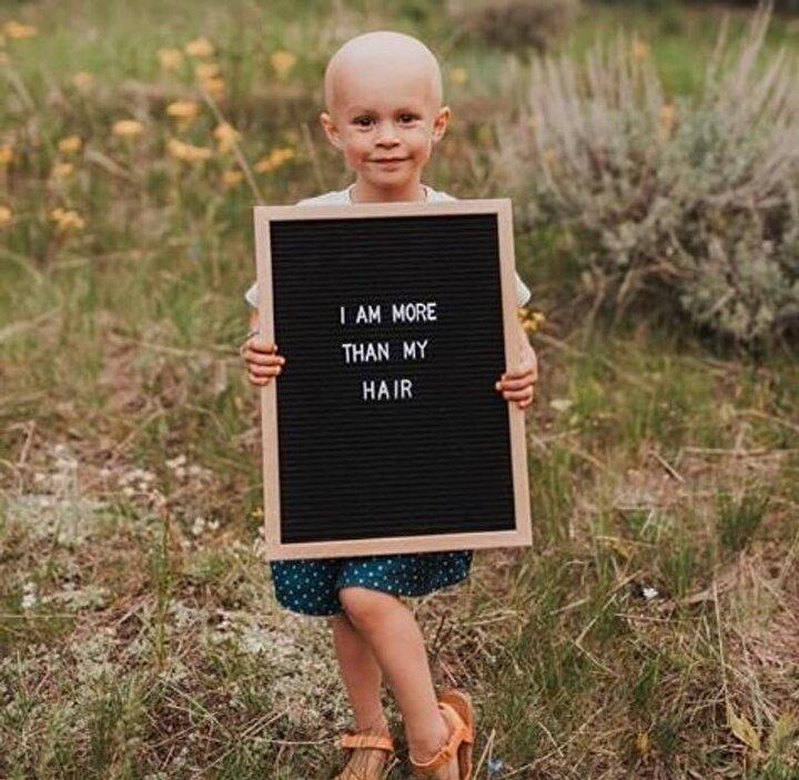 Lulanın aldığı kemoterapiler sonrası saçlarının döküleceğini bilen ailesi bunu özel bir etkinliğe çevirdi.