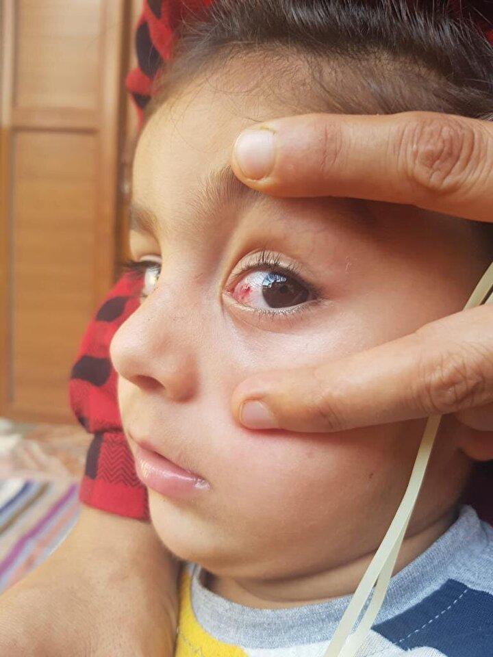 Tatilcilerin göz enfeksiyonundan korunması için alması gereken tedbirleri de anlatan Doç. Dr. Karaarslan, şöyle konuştu: