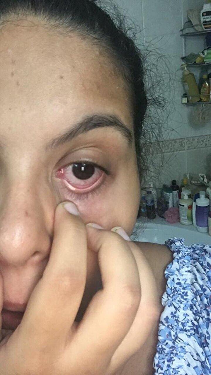 Göz Hastalıkları Uzmanı Doç. Dr. Cüneyt Karaarslan, halk arasında kırmızı göz hastalığı olarak adlandırılan konjonktivit hastalığına karşı uyarılarda bulundu.