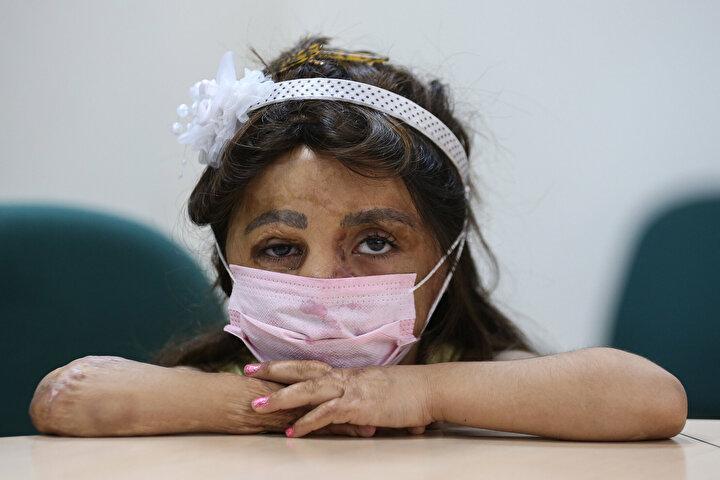 Suriyedeki evlerine atılan bomba nedeniyle vücudunun büyük bölümü yanan Hane Ama Dimonun yüzü, Antalyada yapılan doku nakliyle güldü. Suriyede annesi Fatma Mansur ile babası Nefe Ömer Dimo ve 2 kardeşiyle yaşadıkları evleri bombalanan Hane Dimonun, vücudunun büyük bir bölümü yandı.