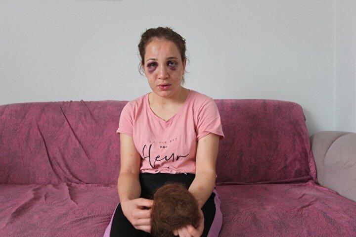 Söke'de alkol bağımlısı olduğu iddia edilen Ü.K.'nin şiddetine maruz kalan Özlem K.'nin yüzü eşi tarafından tanınmaz hale geldi. Kocasından kaçarak ailesinin yanına sığınan genç kadın, bu sefer de ölümle tehdit edildiğini iddia etti. Üç çocuk annesi Özlem K., şikayetçi olduğu kocasının elini kolunu sallayarak dolaştığını belirterek öldürülmekten korktuğunu söyledi.