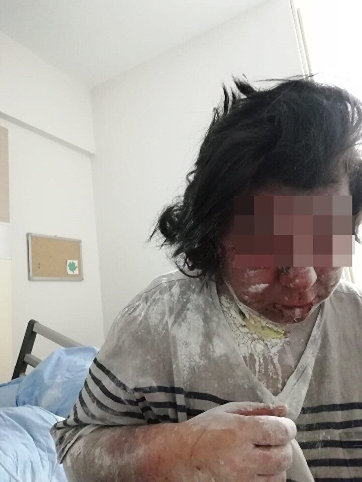 Özel bir hastaneye daha başvuran Kelleci'ye gözünün alınmasına gerek olmadığı ve tekrardan görmesi için ameliyat masrafının 92 bin olduğu söylendi. Genç kadın, davanın sonuçlanmamasından dolayı maddi durumlarının kötü olduğunu belirterek, tedavisi için yardım istedi.