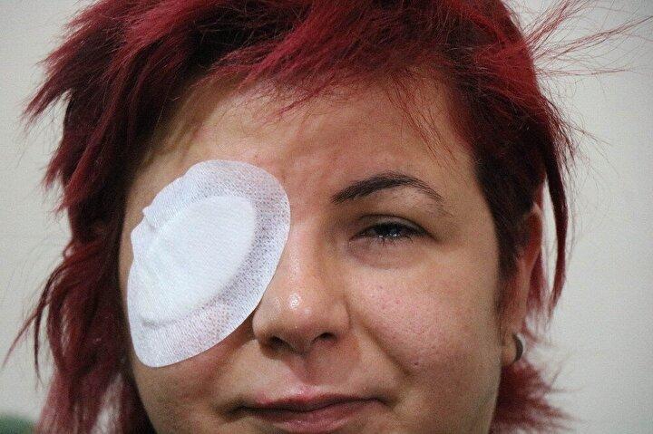 """İstanbul'da üniversite hastaneleri de gözümün alınması gerektiğini ifade ettiler. Özel bir hastane ise gözün alınmasına gerek olmadığını, ameliyat ile görebileceğimi söyledi. Ameliyat masrafı için de 92 bin TL istediler. Şu anda sağ gözüm hiç görmüyor. Sol gözüm de yüzde 20 görüyor"""" dedi."""