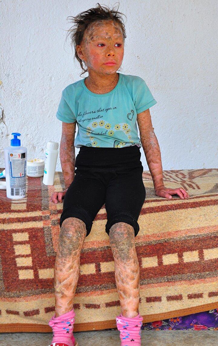 Zahide Akdağ ise tedavi olarak, akranları gibi oynamak istiyor. Küçük kız, Ben yanıyorum ve kaşınıyorum. Tedavi olmak istiyorum dedi.