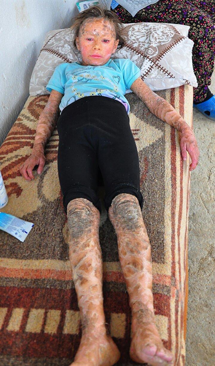 Balık pulu hastası Zahide, tedavi olup, yaşıtları gibi oynamak istiyor