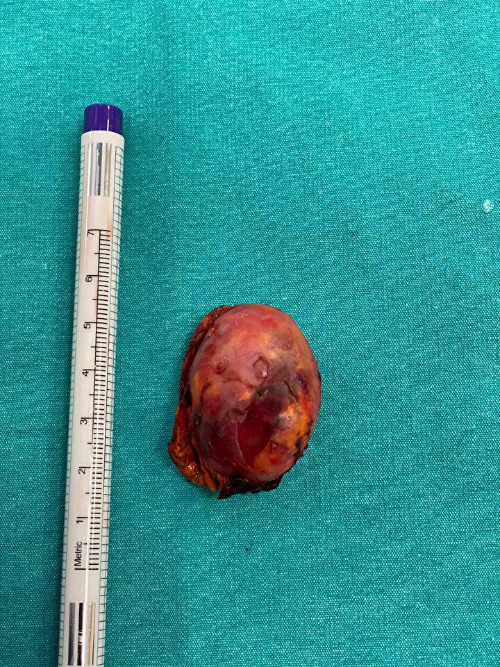 İlaçlar nedeniyle bebeğini dahi emziremeyen Çörekçioğlu, yapılan tetkikler sonrası şaşkına uğradı. Çekilen karın tomografisinde genç kadının sağ böbrek üstü bezinde 3.5 santimetrelik bir tümör tespit edildi. Operasyonu gerçekleştirilen Medipol Pendik Hastanesi Genel Cerrahi Bölümünden Cerrahi Onkoloji Uzmanı Prof. Dr. Yavuz Kurt, feokromasitoma adı verilen bu tümörün milyonda 1 ila 8 kişide görüldüğüne dikkat çekerek, ameliyatın önemine değindi.