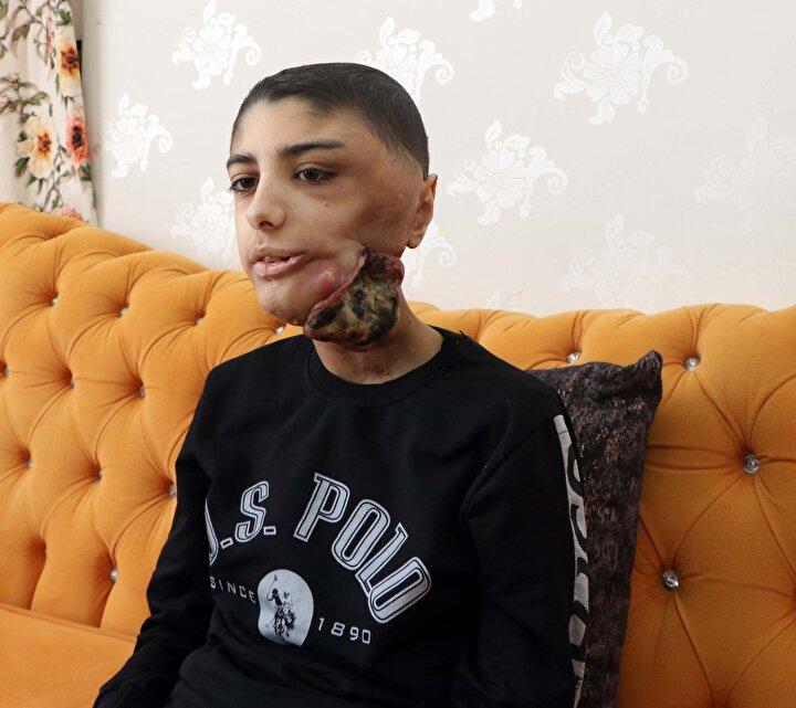 Sürecimiz 1,5 yıl kadar hastanede devam etti. Bu süreçte hem radyoterapi hem de kemoterapi tedavisi aldı. Tedavi yanıt vermeyince geçtiğimiz yılın ağustos ayında Gaziantep Üniversite Hastanesinde ameliyat yapıldı. Tümör çıkartıldıktan sonra çene kemiği yerine platin takıldı. Takılan platin 1 ay sonra açığa çıkmaya başladı. Dolayısıyla tekrar ikinci bir ameliyat yapıldı...
