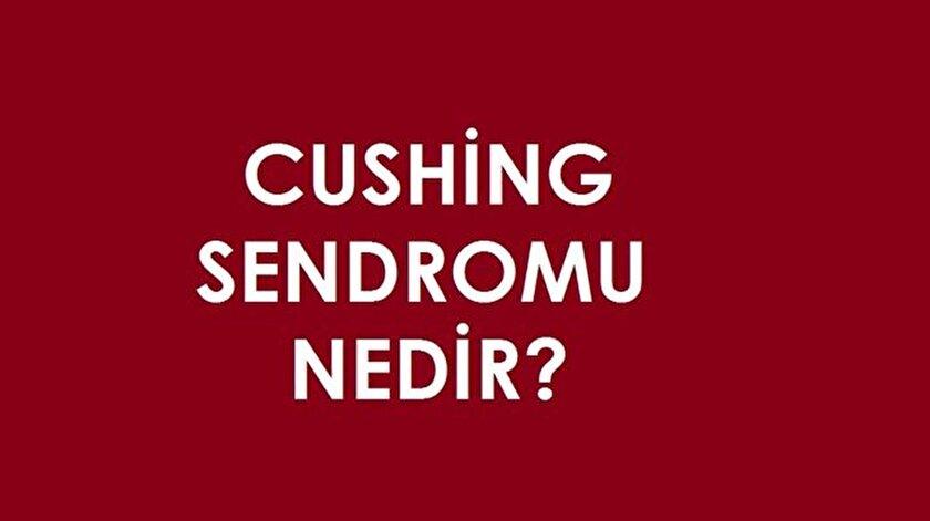 Cushing sendromu nedir ve belirtileri nelerdir?