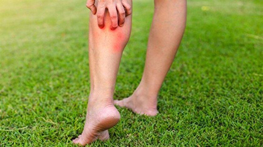 Kırsal kesimlerde, piknik veya park gezilerinde böcek sokmalarına karşı dikkatli olun.