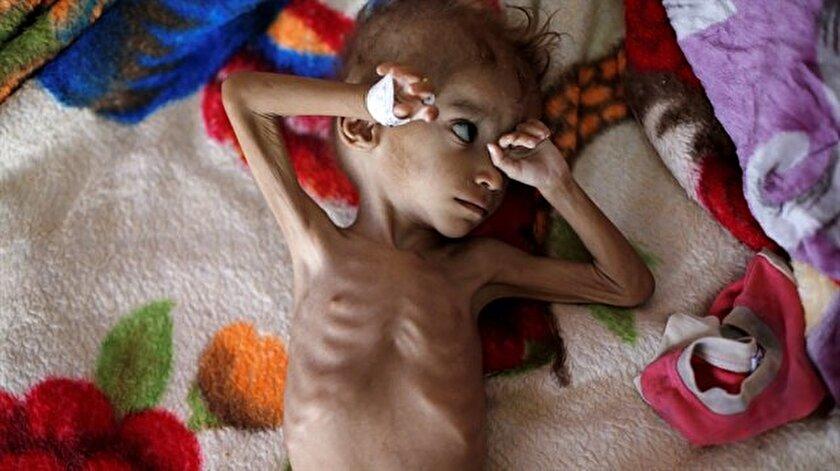Yemen, dünyanın en büyük insani krizlerinden birini yaşıyor. (Fotoğraf: Reuters)