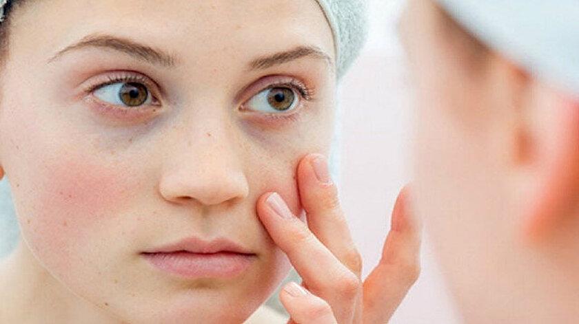 Lupus hastalığı nedir, belirtileri nelerdir? Lupus hastalığı neden olur?