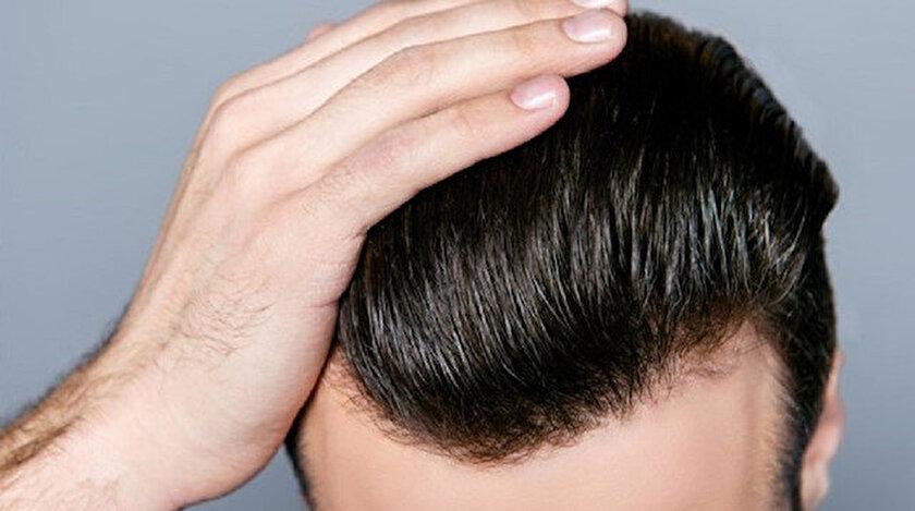 Türkiye saç ekiminde oldukça iyi yetişmiş hekim ve sağlık personeli potansiyeline sahip.