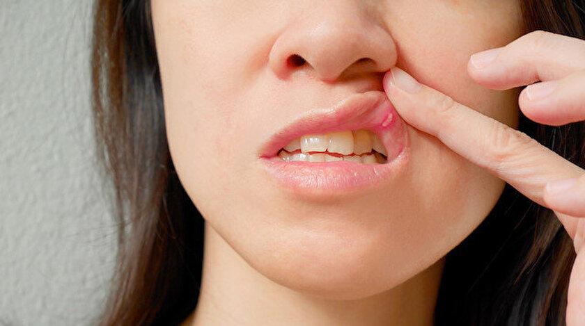 Cilt enfeksiyonlarının çok sık görülmesi (apseler, uçuklar) bağışıklık sisteminin yetersizliğinin bir işareti olabilir.