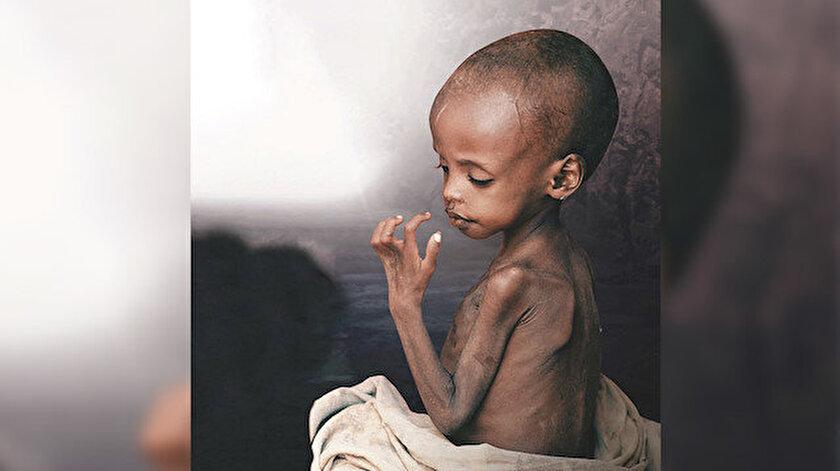 En tehlikeli virüs açlık: Her gün 8220 çocuk açlıktan ölüyor