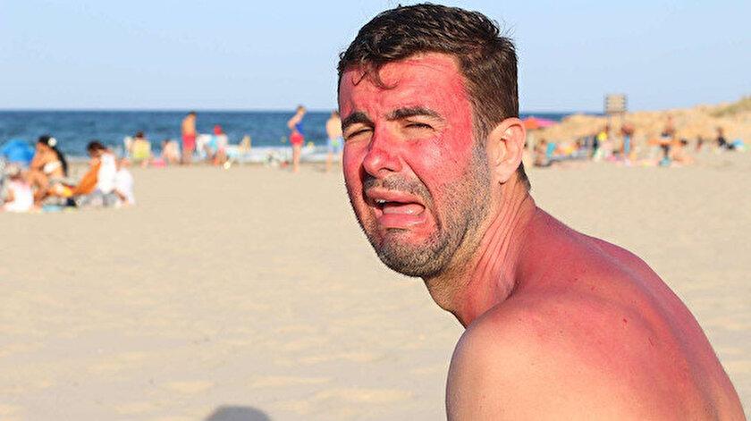 Uzmanlar, güneş yanıklarında doğru tedavinin çok önemli olduğunu söylüyor.