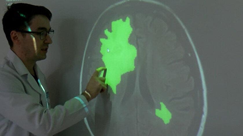 Yapay zeka ile beyin tümörü 5-10 saniyede tespit ediliyor.