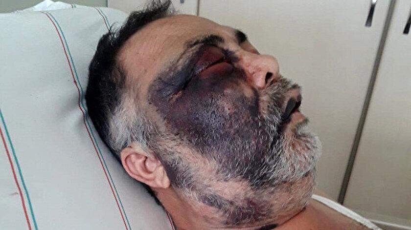Öldüresiye dövülen Mümin Kara, saldırganların tutuklanmasını istiyor.