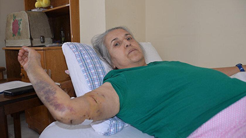 Sokak köpeklerinin saldırısına uğradı canını zor kurtardı: 12 gün hastanede yattım