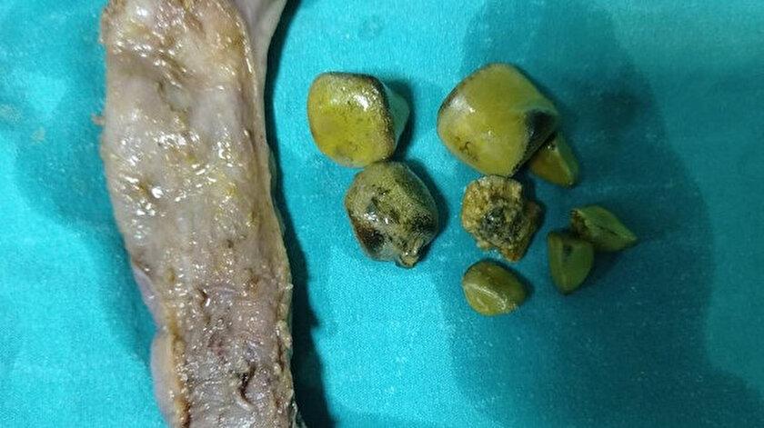 Taş şikayetiyle hastaneye geldi 30 santimlik safra kesesi çıkartıldı: Tıp literatüründe ikinci vaka