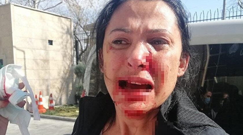 Öğretmen kalemle dehşet saçtı: Aynı sitede oturduğu komşusunu kanlar içinde bıraktı