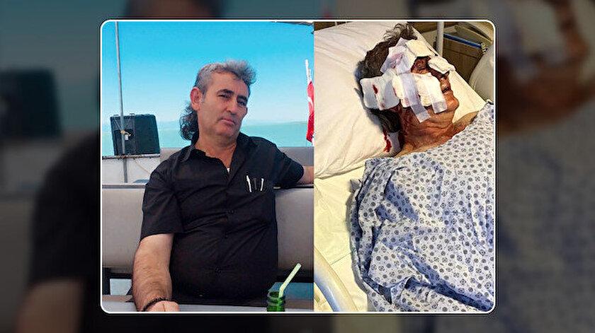 Maymun kafesinden kaçtı otel personelinin yüzünü parçaladı