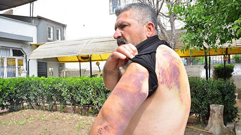 Adana haberleri: Traktörle çarpışan otomobilin sürücüsü: Pusuya düşürülüp, darbedildim