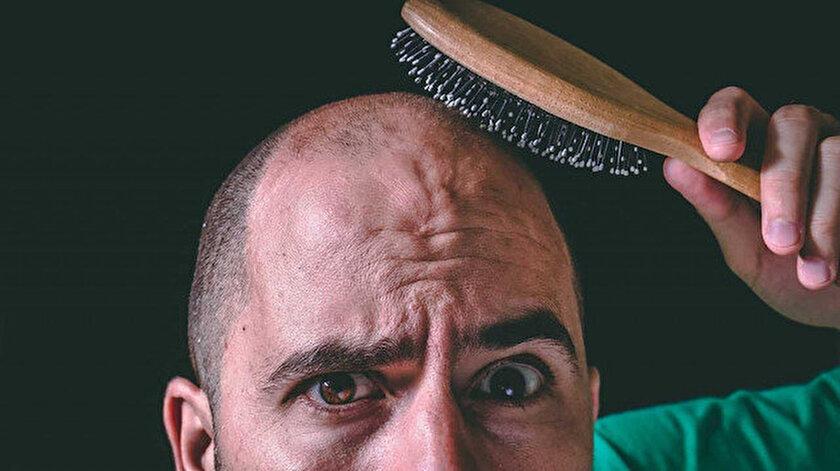 Kelliğe yatkın erkeklere korona uyarısı: Virüse yakalanma ihtimalleri 2.5 kat daha fazla